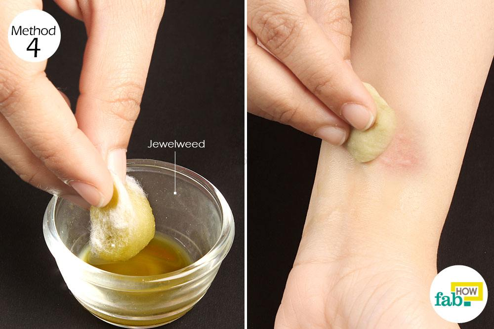 Natural Way To Get Rid Of A Rash