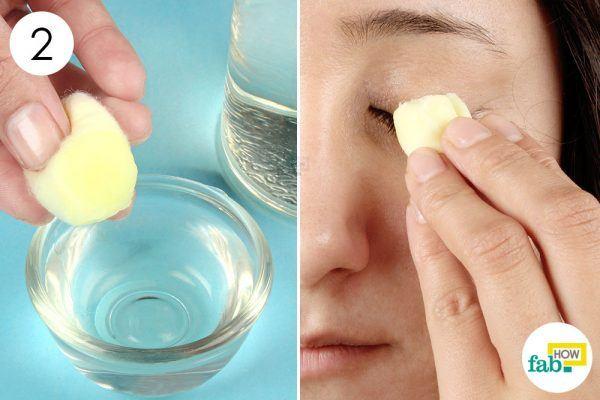 acv to get rid of pink eye