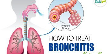 get rid of bronchitis
