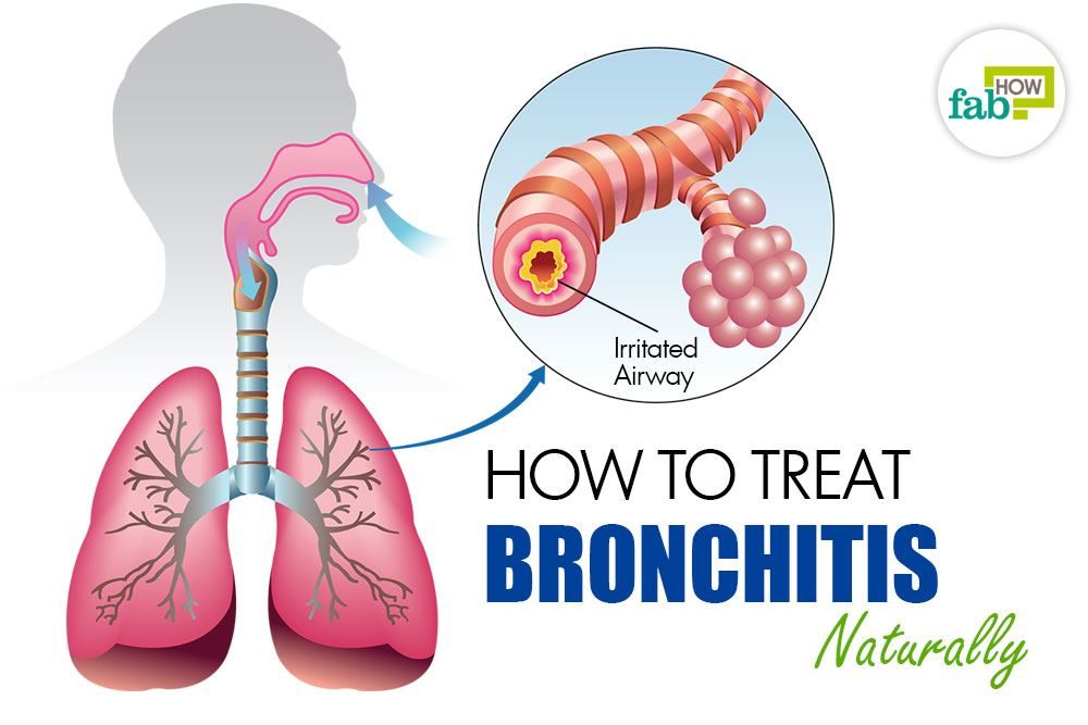 Bronchitis How To Treat Naturally