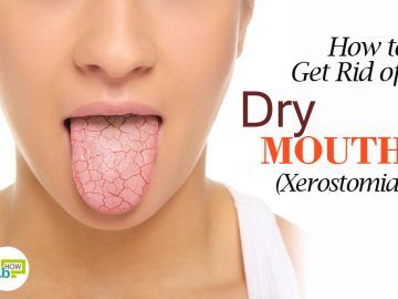 get rid of dry mouth