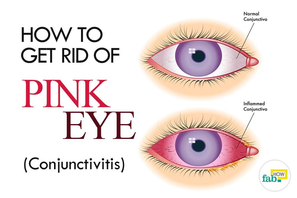 How To Get Rid Of Pink Eye At Home 28 Images How To