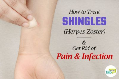 How to Treat Shingles