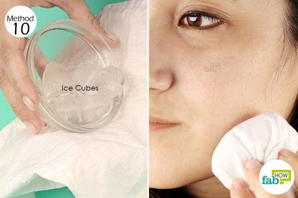 use ice compress for toothache