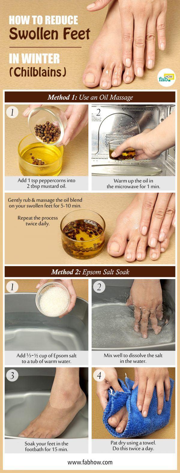 reduce swollen feet