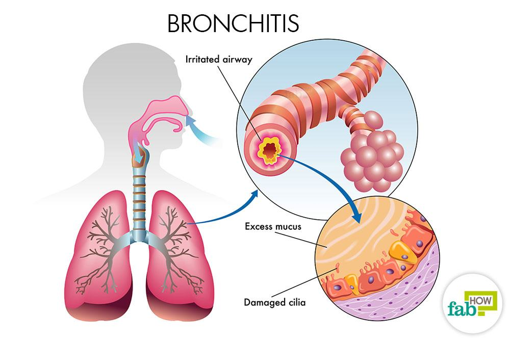 How to treat bronchitis naturally fab how