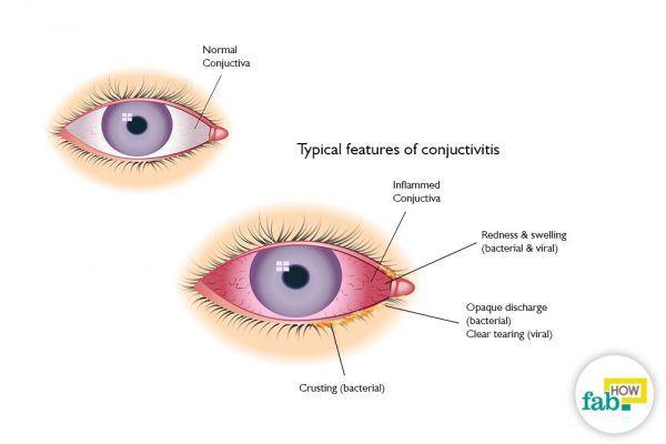 get rid of pink eye