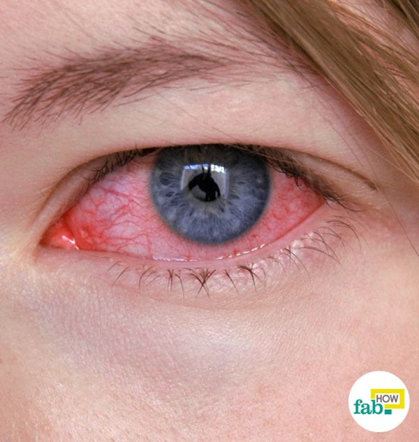 How to Get Rid of Pink Eye (Conjunctivitis) without ...