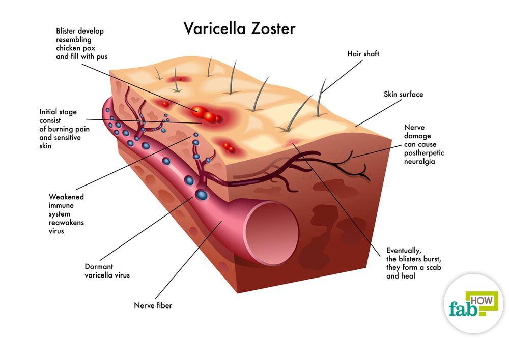 Hvordan man behandler Helvedesild Herpes zoster og slippe af Pain Infektion-9815