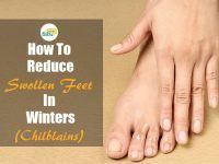 reduce swollen feet in winter chilblains