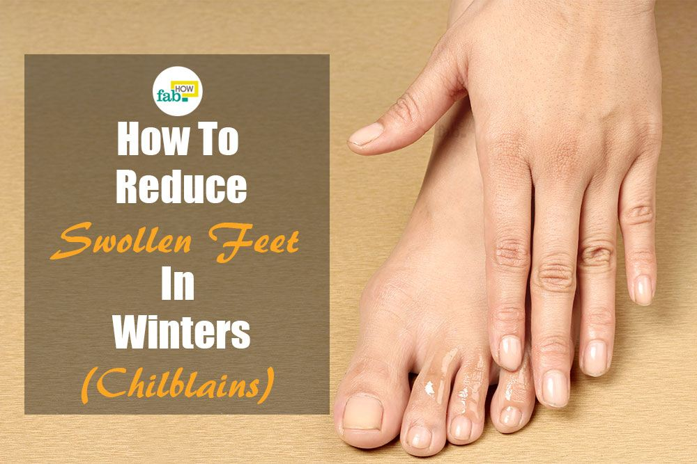 reduce swollen feet in winter chilblains