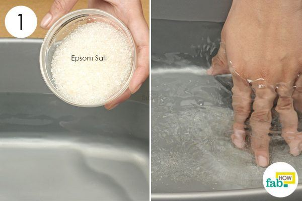 epsom salt footbath for chilblains