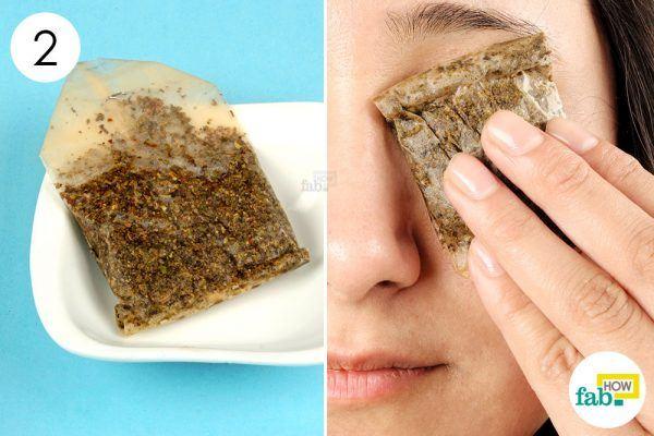 tea bag to get rid of pink eye