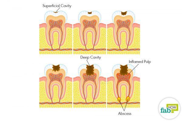 treat cavity