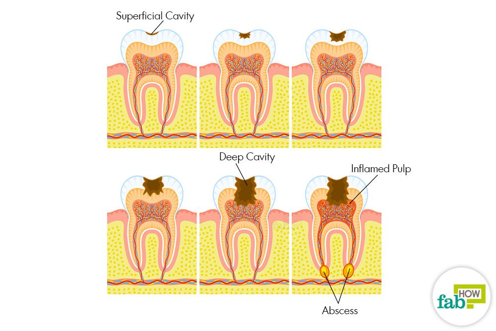 How to Get Rid of Cavities and Heal Tooth Decay | Fab How