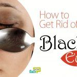 get rid of black eye