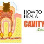 heal a cavity