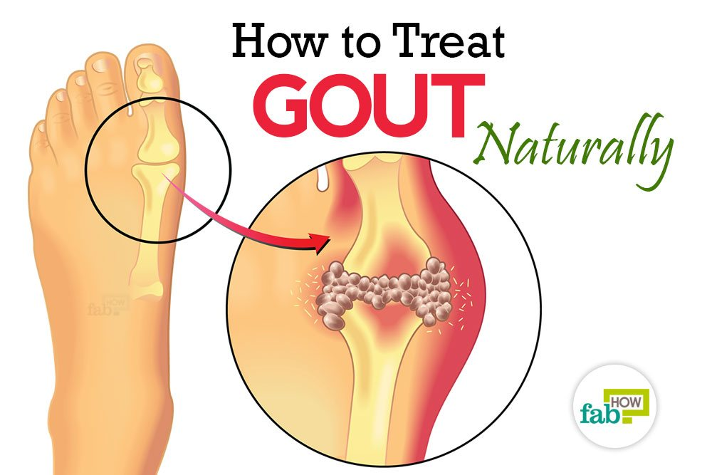How To Treat Gout Naturally And Prevent Gout Attacks