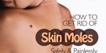 how to get rid of skin moles feature image
