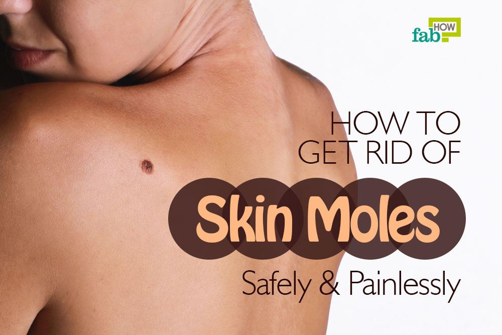 How To Get Rid Of Moles Safely And Painlessly Fab How