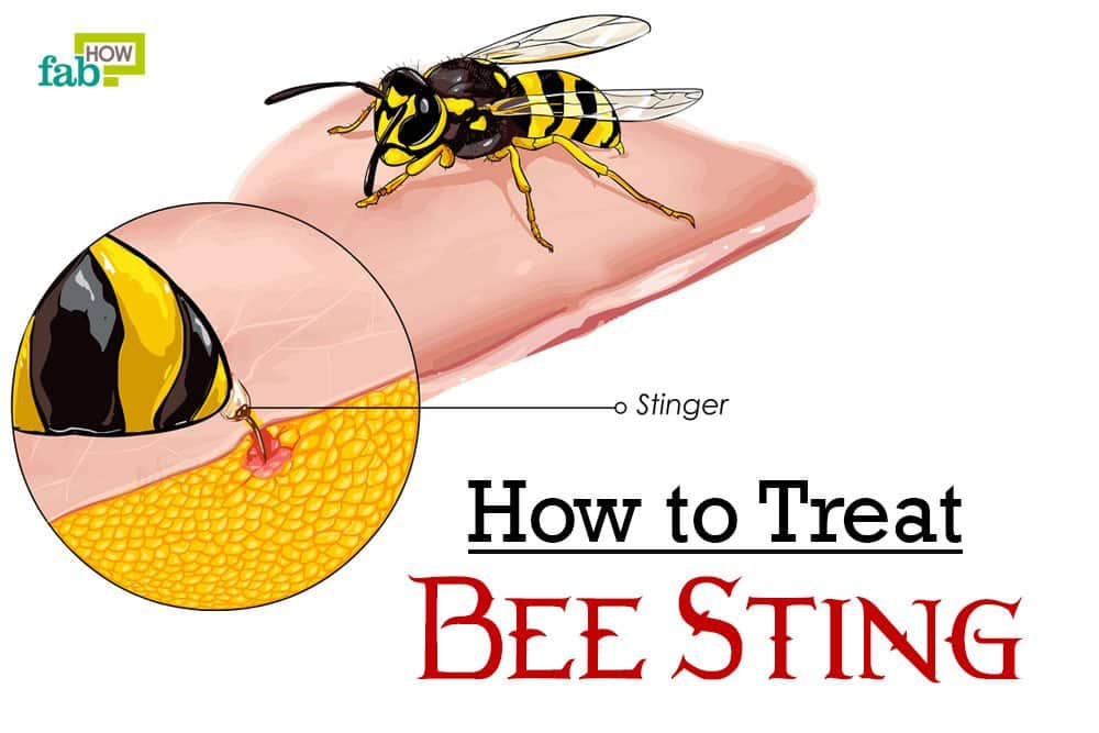 bee sting reactions local systemic and toxic drgreenecom - 1000×667