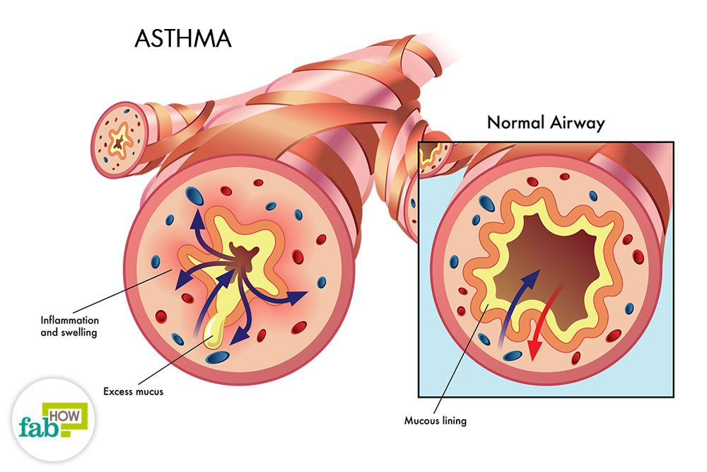 How To Get Relief From Asthma 10 Powerful Home Remedies