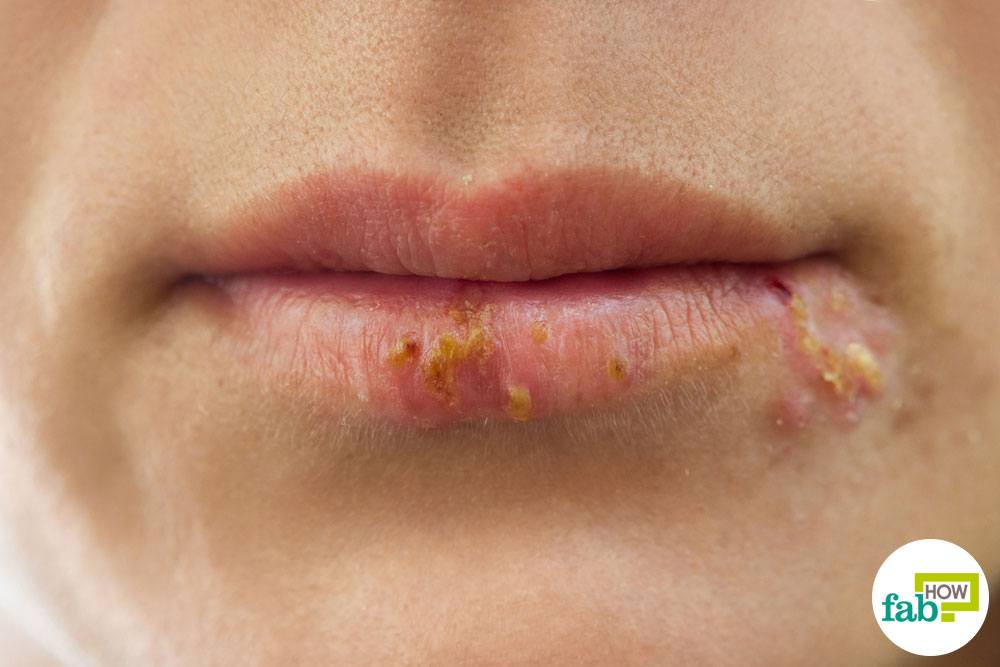Lusts herpes sores on mouth