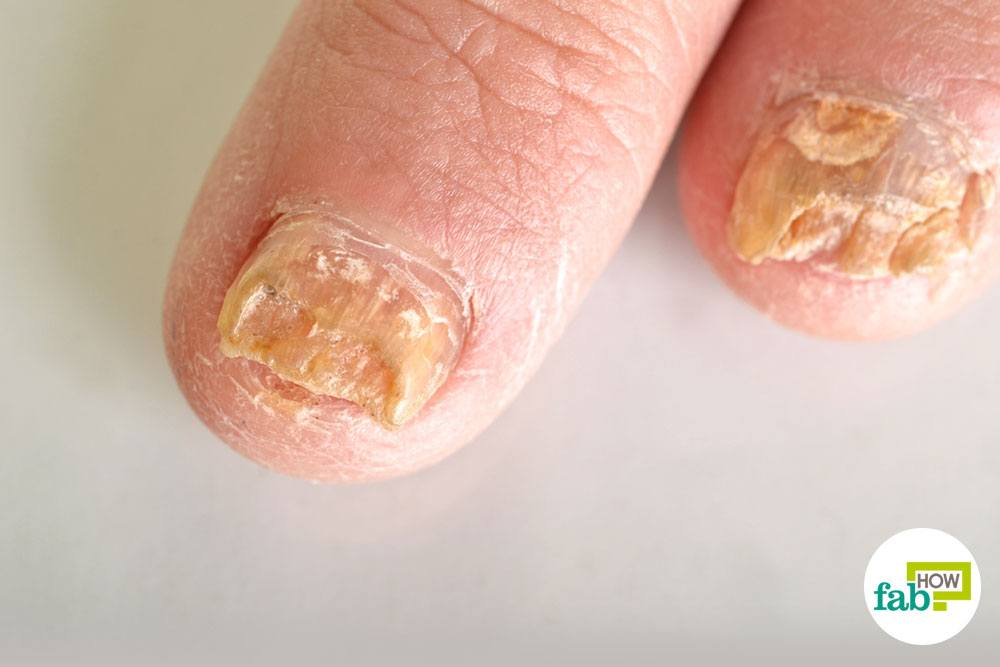 How to Get Rid of Toenail Fungus | Fab How