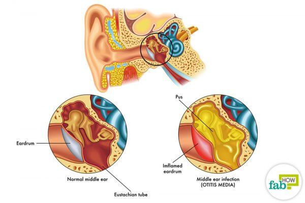get rid of ear infection