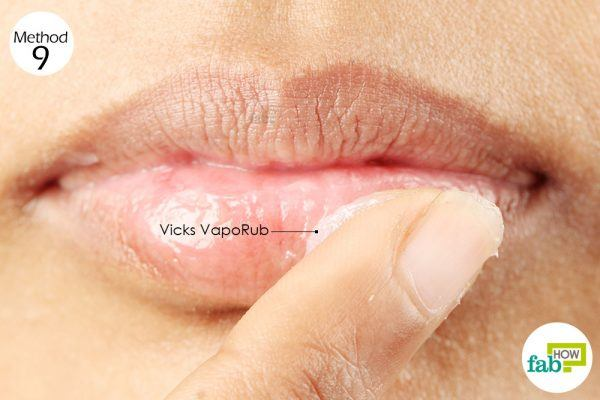 apply vicks on chapped lips and leave overnight for healing
