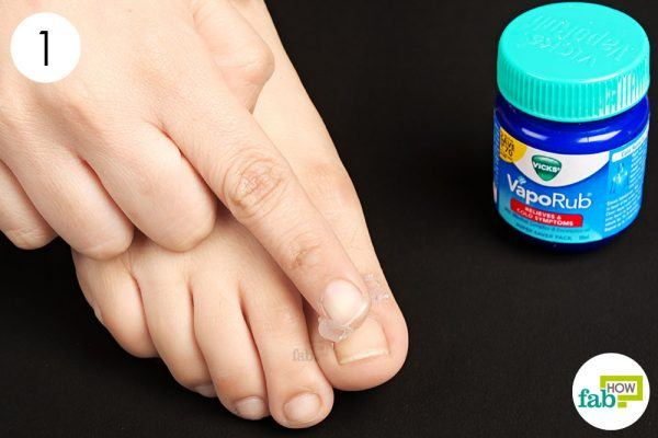to treat toel nail fungus apply vicks on the affected nail