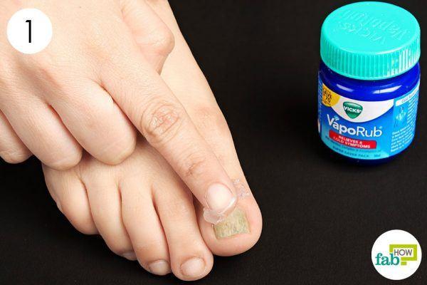 apply vicks vaporub on toenail fungus