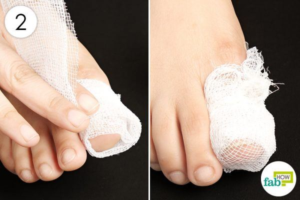 to treat toenail fungus apply vicks on the nail and cover with bandage