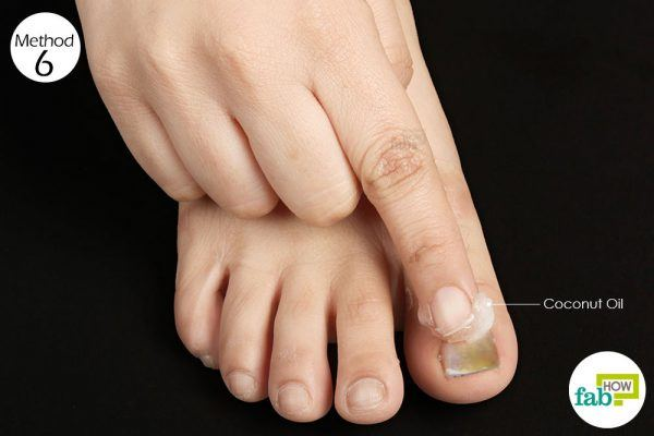 apply coconut oil on nail fungus