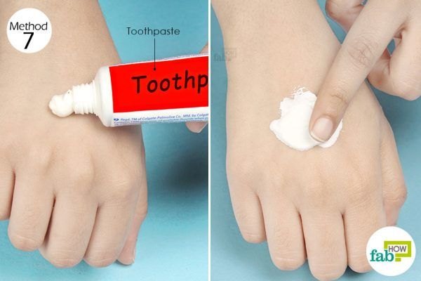 use toothpaste to treat a bee sting