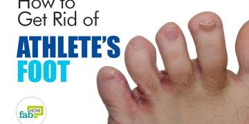 how to get rid of athlete's foot