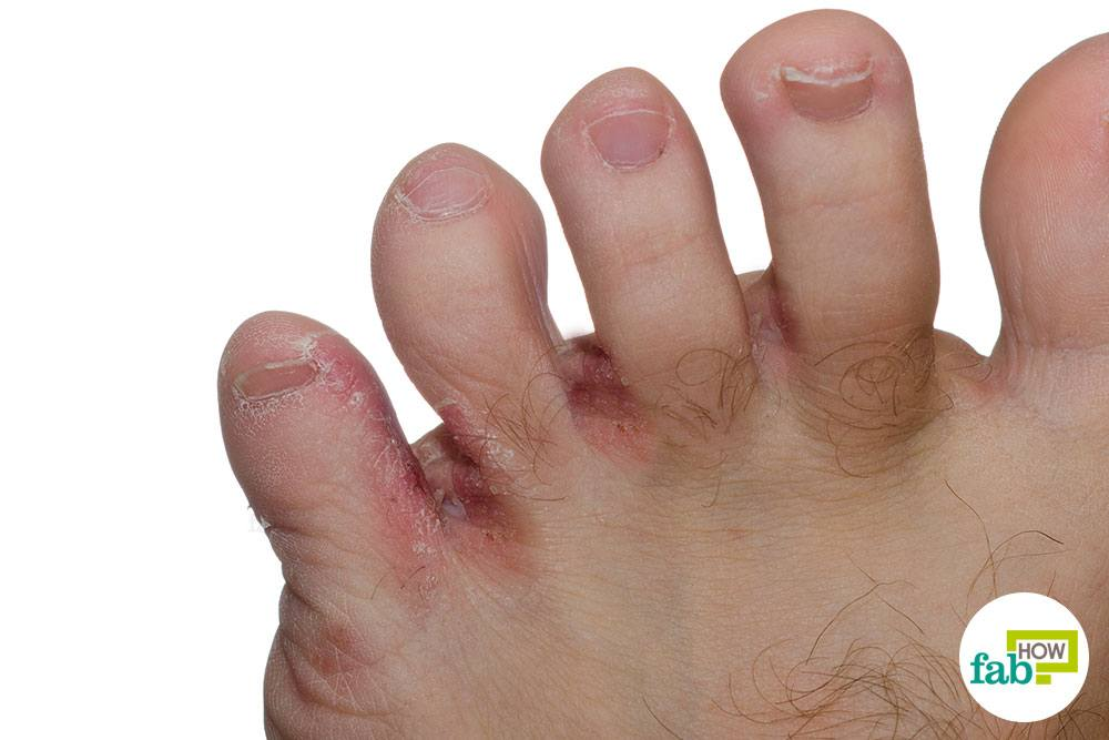 How To Get Rid Of Athletes Foot Fast Kill The Fungal Infection