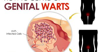 how to get rid of genital warts
