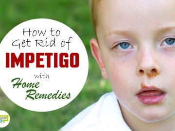 feat get rid of impetigo