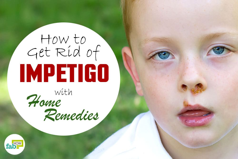 How To Get Rid Of Impetigo With Home Remedies Fab How