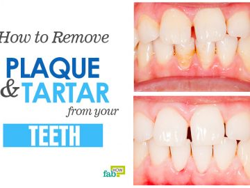 feat remove plaque and tartar