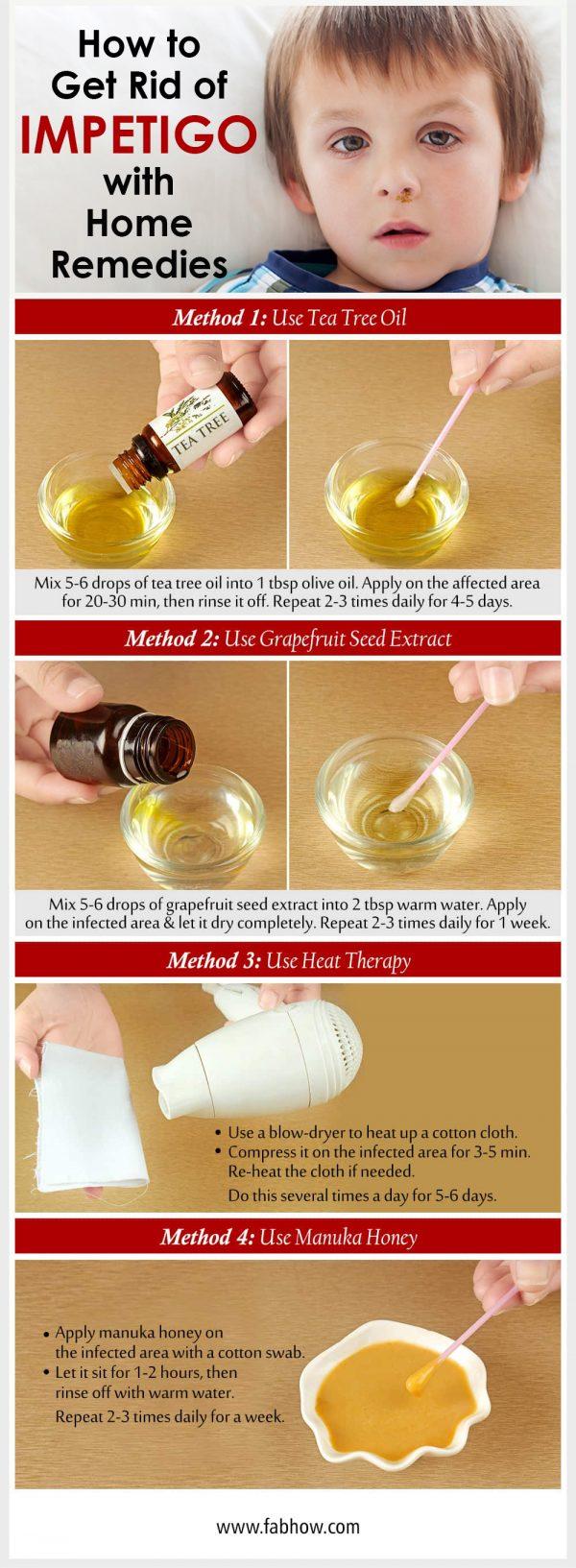 Get Rid of Impetigo with Home Remedies
