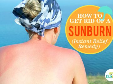 feat how to get rid of sunburn