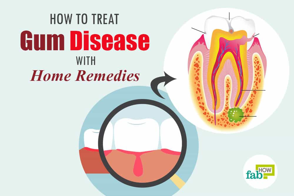feat how to treat gum disease