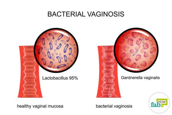 How To Get Relief From Bacterial Vaginosis With Home