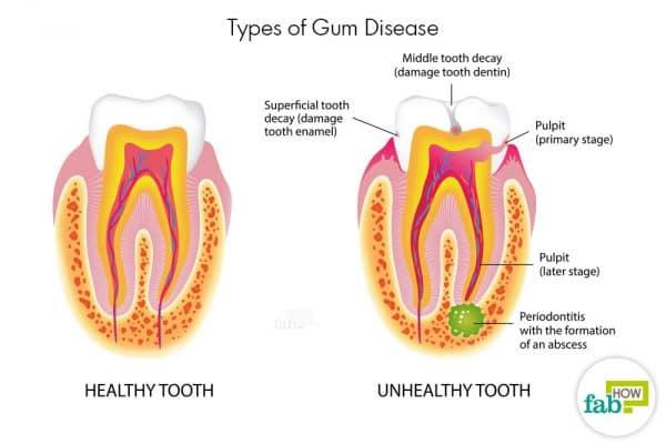into gum disease