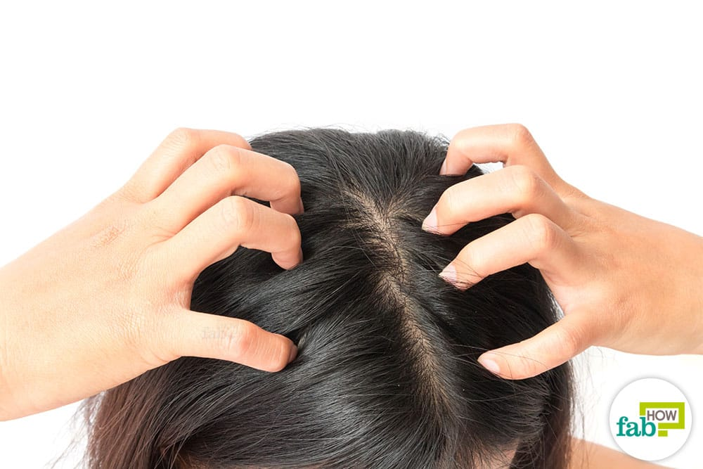 How to get rid of dandruff with henna hair packs or hair masks recommendations