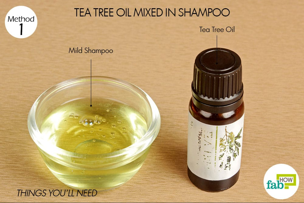 How To Get Rid Of Itchy Scalp Top 6 Home Remedies Fab How