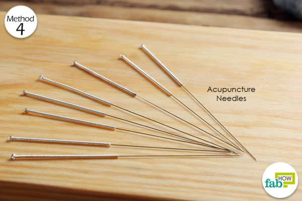 acupuncture to treat shingles pain