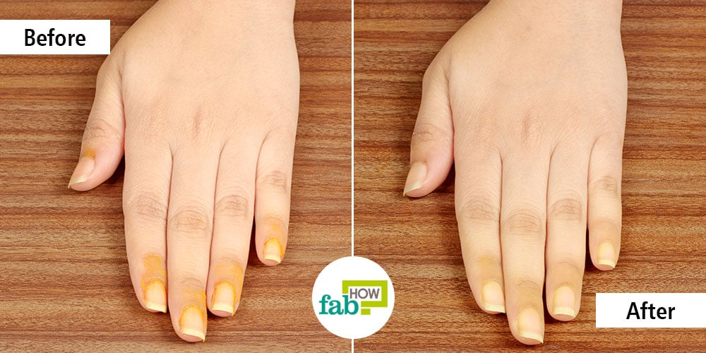 How to Remove Turmeric Stains from Skin and Nails at Home ...
